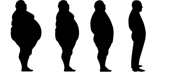 1. Obesidad y alteraciones metabólicas